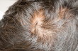 Human alopecia or hair loss problem and grizzly - 71282912