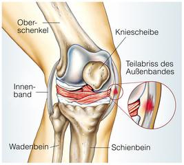 Teilabriss des Außenbandes.Kniegelenk