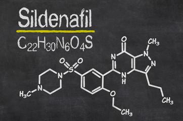 Schiefertafel mit der chemischen Formel von Sildenafil