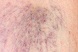 Close-up of dermis with varicose veins poster