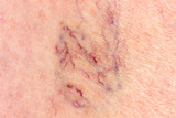 Close-up of leg with varicose veins poster