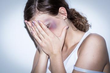 Mutilated women