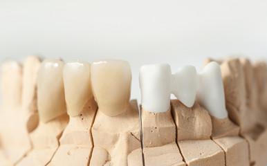 Dental prothetic