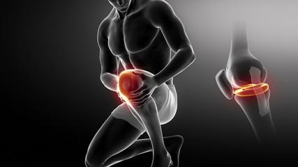 Injured knee concept