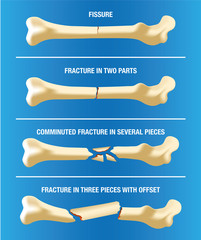 Anatomy multiple bone fractures of the skeleton