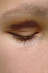 Blaues Auge, h.