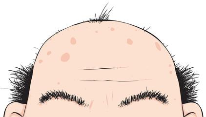 Baldy Bloke