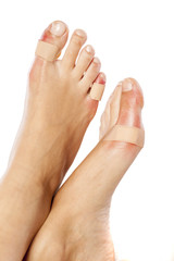 Closeup of a woman's toes with a blister plaster on