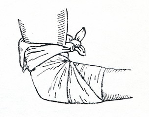 Triangular bandage applied to elbow