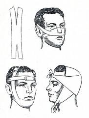 Bandaging the head