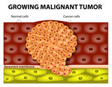 growing malignant tumor poster