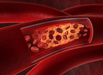 Arterienverkalkung 2