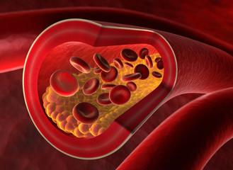 Arterienverkalkung 1