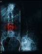 Постер, плакат: spine and pelvis of a human body x ray painful area
