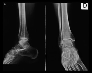 X-ray tarsal, ankle and foot