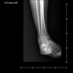 X-ray tarsal and ankle front