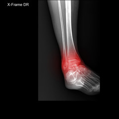 X-ray tarsal and ankle painful area