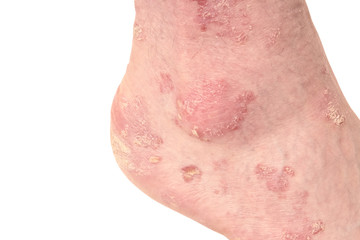 Psoriasis of the Ankle After UVB PUVA Light Therapy Treatment