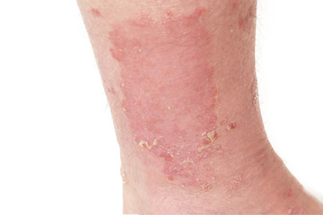 Psoriasis of the Leg After UVB PUVA Light Therapy Treatment