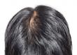canvas print picture - 50代男性の髪の毛のイメージ
