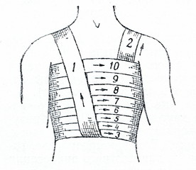 Spiral bandage of chest