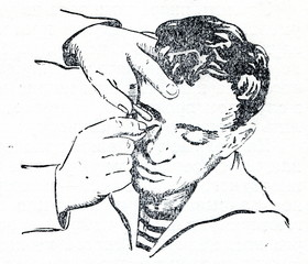 Eye foreign body removal - turning the upper lid