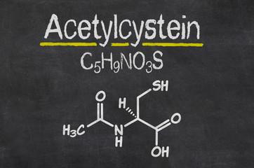 Schiefertafel mit der chemischen Formel von Acetylcystein