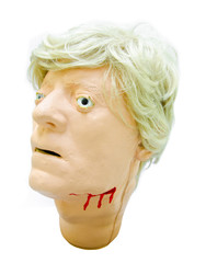 Head injury patients model.