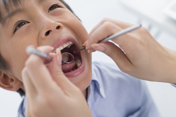 Boy undergoing dental check by opening the big mouth