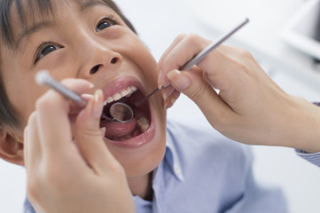 Boy undergoing dental caries check by opening the big mouth