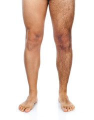 Male hair removal on legs