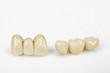 Leinwanddruck Bild - neuer Zahnersatz