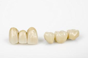 neuer Zahnersatz