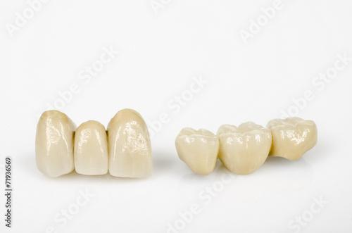 Leinwanddruck Bild neuer Zahnersatz