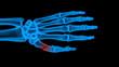 X-ray hand - 71941306