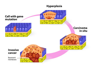 Developmental Phases of Cancer