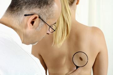 Hautarzt bei Hautkrebs Vorsorgeuntersuchung