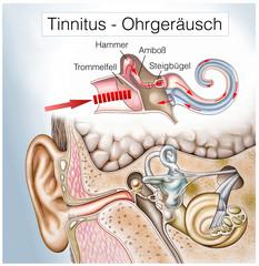Tinnitus.Ohrensausen.Hörsturz