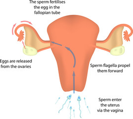 Fertilisation in the Uterus