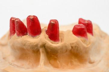 Zahnstümpfe (Modell)