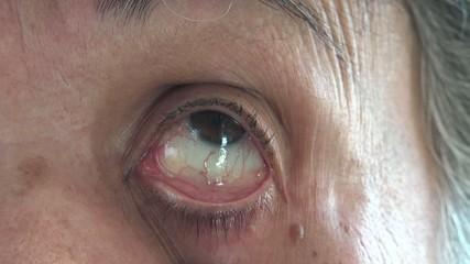 Single eye of a senior woman