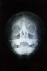 human skull head x-ray