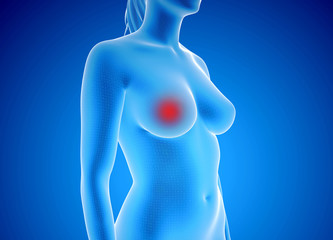 3d rendered illustration of breast cancer