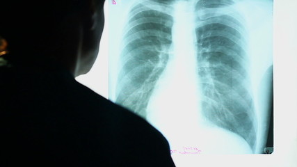 Doctor looking at X-ray image of human chest, scanning lungs