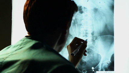 Lumbar MRI scan, doctor examining X-ray image of lower body