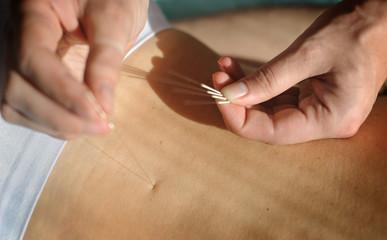 Acupuncture.Chinese medicine treatmen