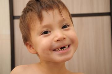 Calf's teeth changing