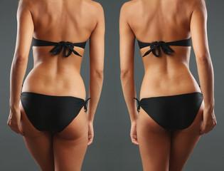 Plastic surgery. Liposuction. Slim body concept