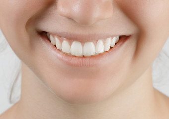 teen smile with white perfect teeth