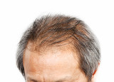 Fototapety Male head with hair loss symptoms front side.